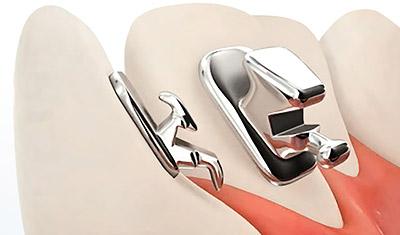 Лингвальные брекеты - невидимые внутренние брекеты для выравнивания зубов — Стоматология «Все свои!» — официальный сайт